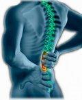 Terapie idiopatické skoliózy metodou ASC