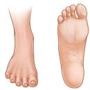 Podologie – Fyzioterapie chodidla